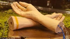 Google: Möcüzə-qolbaq insan orqanizmində xərçəng hüceyrələrini aşkar edəcək