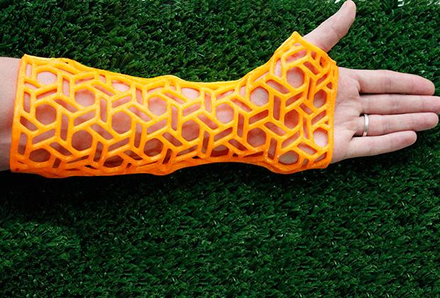 3D-çap texnologiyalarının tətbiq sahələri genişlənməkdədir