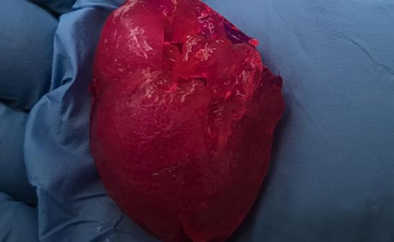 Стартап из Чикаго напечатал мини-сердце