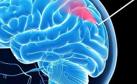 """Beyin biopsiyası üçün kameralı """"ağıllı"""" iynə hazırlanıb"""
