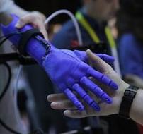 Kolumbiyada əlillər üçün protezlərin hazırlanmasında 3D-çap texnologiyasından istifadə edilir