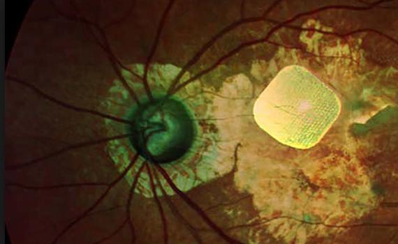 Gözdən əlil insanlara oxumaq imkanını geri qaytaran bionik göz təqdim olunub